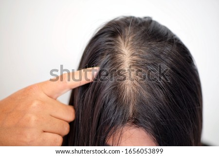 Woman with thin hair problem. Royalty-Free Stock Photo #1656053899