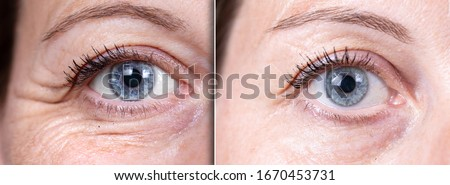 Crow's feet before and after beauty care comparison. Wrinkles removing. Closeup view of aged caucasian women eyes.   Royalty-Free Stock Photo #1670453731