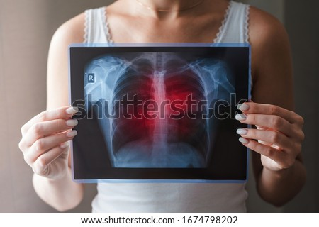 Lung radiography concept. Virus and bacteria infected the Human lungs. Patient with Lung Cancer or Pneumonia.