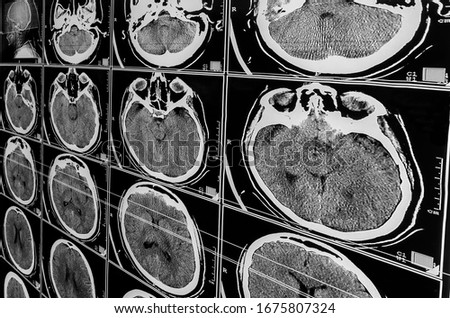 Electromagnetic Tomography Brain. Sequence of vertical sections of a human brain - MRI scan. Real brain MRI slide of a girl. Minimal editing to save fine details. Traumatic brain injury. Medical #1675807324