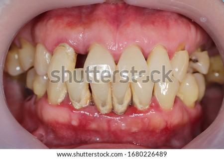 Periodontitis is often known as 'Gum Disease' and is a very common condition in which the gums and deeper periodontal structures become inflamed. Royalty-Free Stock Photo #1680226489