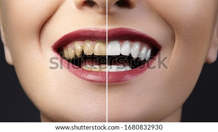 Close-up photo before and after whitening treatment or dental veneers procedure on teeth. Health Care collage of human mouth. Caries therapy