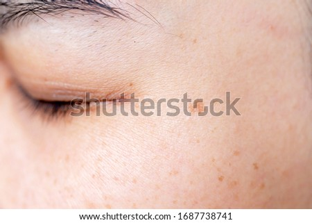 Freckles Over Asian Woman Face, Skin Problems  Royalty-Free Stock Photo #1687738741