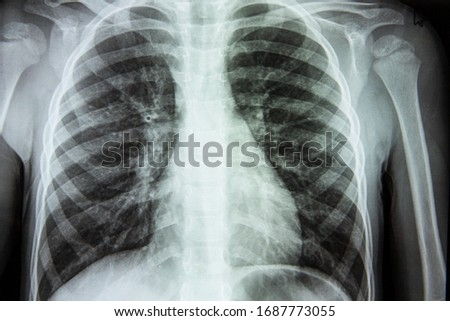 X-ray of a person s lungs with a disease. Coronavirus or cancer infected lungs. Virus screening Royalty-Free Stock Photo #1687773055