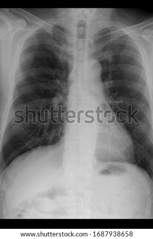 chest xray show acute respiratory distress syndrome and coronavirus Royalty-Free Stock Photo #1687938658