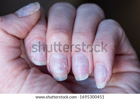 Close-up of brittle nails. Damage to the nail after using shellac or gel polish. Peeling on the nails. Damage to the nail. Shattered nails #1695300451