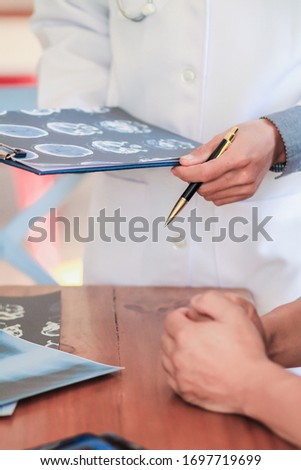 Blurred image,The doctor is diagnosing the tumor picture or cancer from the x-ray film of the patient's brain in order to plan treatment with tumor surgery or cancer from the patient's brain