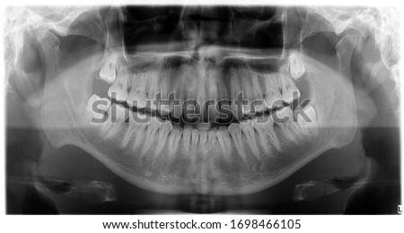 Orthopantomography, OPG X-ray DR digital wisdom teeth Royalty-Free Stock Photo #1698466105