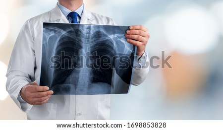 Doctor holding radiography x ray photo on hospital background #1698853828