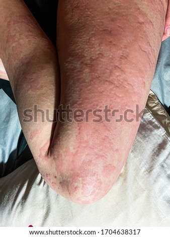 the picture of erythematous rash itch on human leg is call urticaria Medical and education concept