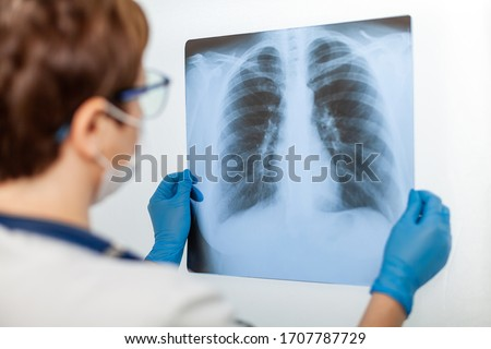 A female doctor examines an X-ray of a patient s lung infected with covid-19 coronavirus, pneumonia.X-rays of light. Fluorography. Checking the lungs in the hospital. Real x-ray of human lungs #1707787729