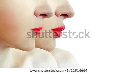 woman beautiful lips   after augmentation #1711914664
