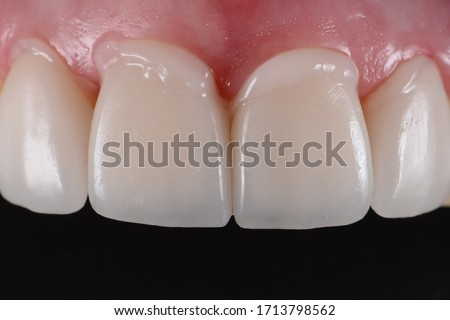Intra oral try in step or mock up before permanent bonding and installation of dental ceramic veneers. Royalty-Free Stock Photo #1713798562