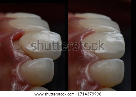 Intra oral try in step or mock up before permanent bonding and installation of dental all ceramic single crown. lateral view with black background. Before and after. Royalty-Free Stock Photo #1714379998