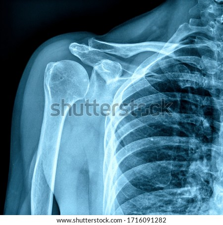 Photo of x-ray human shoulder
