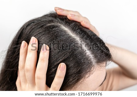 The woman holds her head with her hands, showing a parting of dark hair with dandruff. Close up. The view from the top. White background. The concept of dandruff and pediculosis. Royalty-Free Stock Photo #1716699976