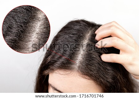 The woman scratches her head with her hand, showing a parting of dark hair with dandruff. Close up.The view from the top.  Zoomed parting of hair.The concept of dandruff and pediculosis Royalty-Free Stock Photo #1716701746