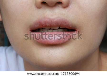 close up of chapped, cracked lips caused wound on the corner of the lips: dry skin problem with mouth disease, Angular cheilitis #1717800694