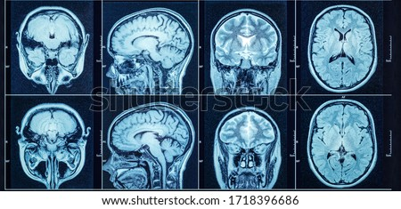 Closeup of a CT scan with brain. Medical, science and education mri brain background. Magnetic resonance imaging. #1718396686