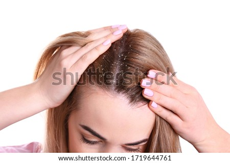 Woman with dandruff in her hair on white background, closeup Royalty-Free Stock Photo #1719644761