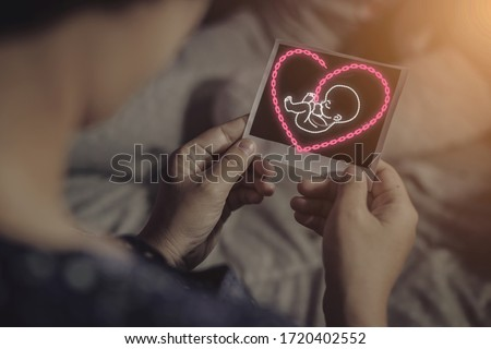 Mothers are looking at an ultrasound picture of a pregnant baby with a virtual baby icon, a chain icon concept that is arranged in a baby shape and has a heart shaped cord that shows care.