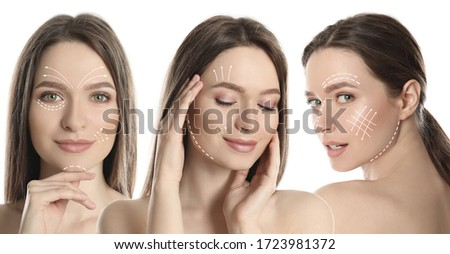 Photos of young woman with lifting marks on face against white background, collage. Cosmetic surgery