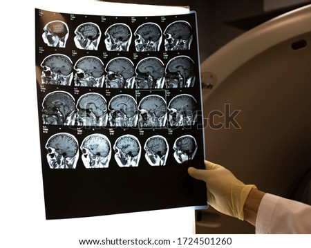 MRI scan of the brain. The doctor looks at the picture in the office. Magnetic resonance scan of the brain.