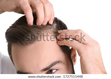 Man with dandruff in his hair on white background, closeup Royalty-Free Stock Photo #1727511448