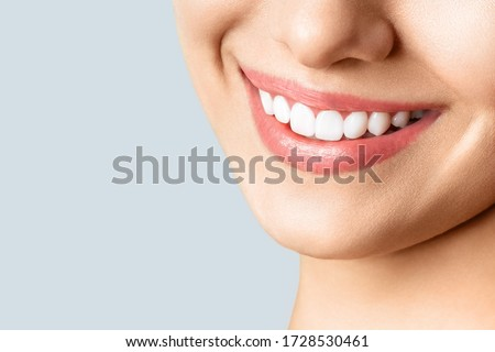 Beautiful female smile after teeth whitening procedure. Dental care. Dentistry concept. Royalty-Free Stock Photo #1728530461