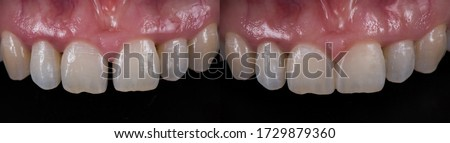 Tooth coloured fillings to close space in the front teeth, before and after. Royalty-Free Stock Photo #1729879360