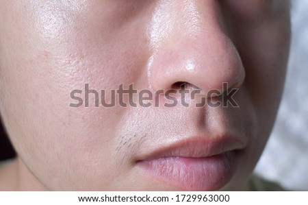 Oily and fair skin, wide pores of Southeast Asian, Myanmar or Chinese adult young man. Oily skin is the result of the overproduction of sebum from sebaceous glands. #1729963000