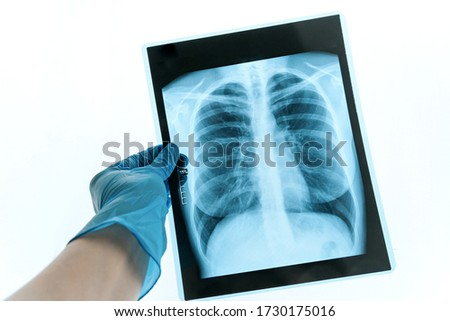 Medical doctor looking at x-ray picture of lungs in hospital. Covid-19 consept