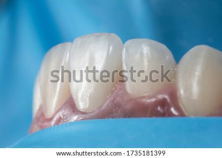 Cementation or bonding procedure of dental ceramic veneers under rubber dam isolation. Royalty-Free Stock Photo #1735181399
