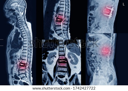 Collection MRI of lumbar spine History of fall with back pain, radiate to leg, rule out spinal stenosis .Impression:Burst fracture of L2 vertebral body with severe vertebral collapse.Medical concept. Royalty-Free Stock Photo #1742427722