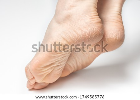 Dry and cracked soles of feet on white background, womans feet with dry heels, cracked skin Royalty-Free Stock Photo #1749585776