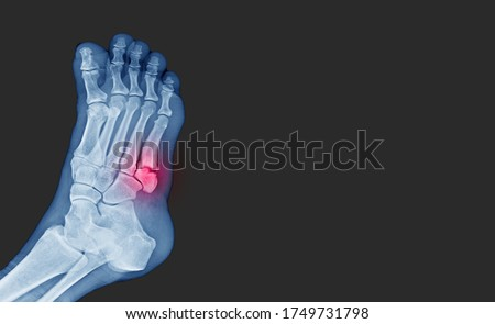 X-ray foot showing toe 5th bone fracture ( base of metatarsal fracture ) from against the wall. Highlight on fracture site and painful.Medical healthcare concept. Royalty-Free Stock Photo #1749731798