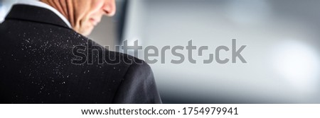 Fallen Dandruff On Man Suit. Businessperson Shoulder Royalty-Free Stock Photo #1754979941