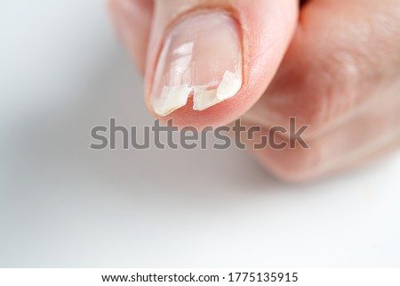 broken nail on a female hand. close-up shoot of broken nail. #1775135915