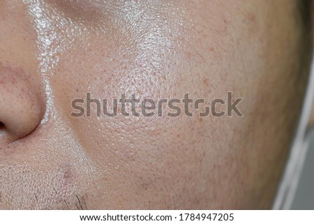 Oily and fair skin, wide pores of Southeast Asian, Myanmar or Korean adult young man. Oily skin is the result of the overproduction of sebum from sebaceous glands. Royalty-Free Stock Photo #1784947205