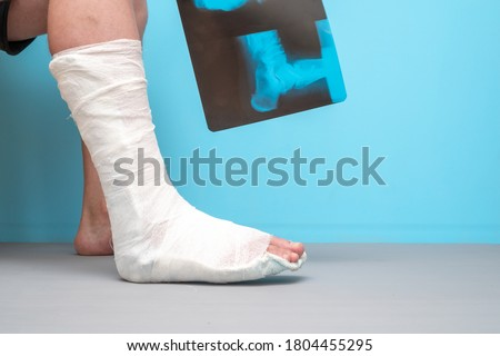 Legs of a man with a broken leg on a blue background. X-ray image of ankle fracture , broken ankle , pott fracture fix by open surgery and metal plate and screw Royalty-Free Stock Photo #1804455295