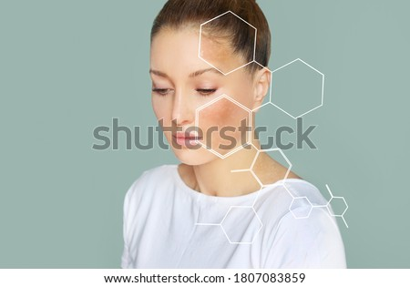 Dark spots, freckles,hyperpigmentation(melasma or chloasma),concept- skin lightening, skin whitening, Skin Brightening Royalty-Free Stock Photo #1807083859