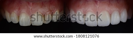 Smile makeover with dental ceramic veneers treatment treating yellow and crooked teeth, result in clean, perfect, youth and white teeth smile. Before and after close up full mouth. Royalty-Free Stock Photo #1808121076