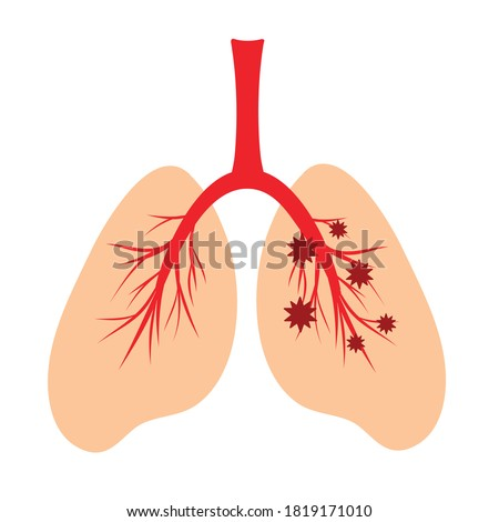 Human lungs, schematic color illustration of human lungs infection with a virus. Anatomical structure of the human respiratory system. Virus trapped in the lungs, influenza coronavirus