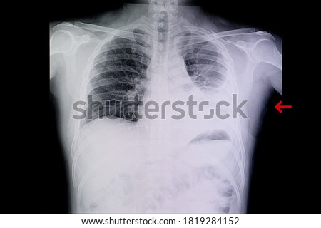 A chest xray film of a patient with left lung pneumonia and pleural effusion. SARS-CoV-2 virus covid-19 infection.   Royalty-Free Stock Photo #1819284152