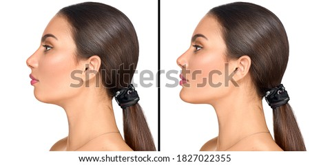Before and after plastic surgery of a chin. Cosmetic correction small weak chin, plastic surgery, reduction surgery, implants, fillers. Aesthetic medicine. Beautiful Young woman portrait #1827022355