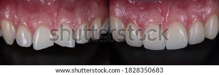Treatment for front teeth fracture with dental ceramic veneers. Royalty-Free Stock Photo #1828350683