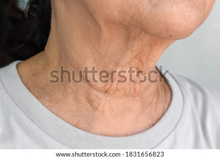 Aging skin folds or skin creases or wrinkles at neck of Southeast Asian, Chinese elderly woman. Royalty-Free Stock Photo #1831656823