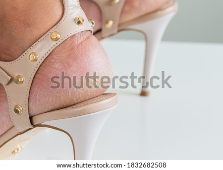 Close up the cracks on dry heels of a woman in high heel shoes on a white background dehydrated skin on the heels of female feet.   Royalty-Free Stock Photo #1832682508
