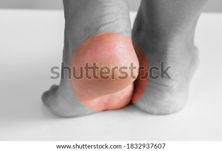 Close up deep crack dry heel  of woman foot with bad skin is covered with cracks Royalty-Free Stock Photo #1832937607