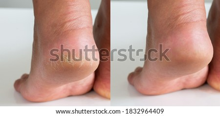 Image before and after treatment of dry heels cracks skin dehydrated skin on heels of female feet. Royalty-Free Stock Photo #1832964409